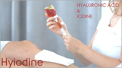 Hyiodine esettanulmany